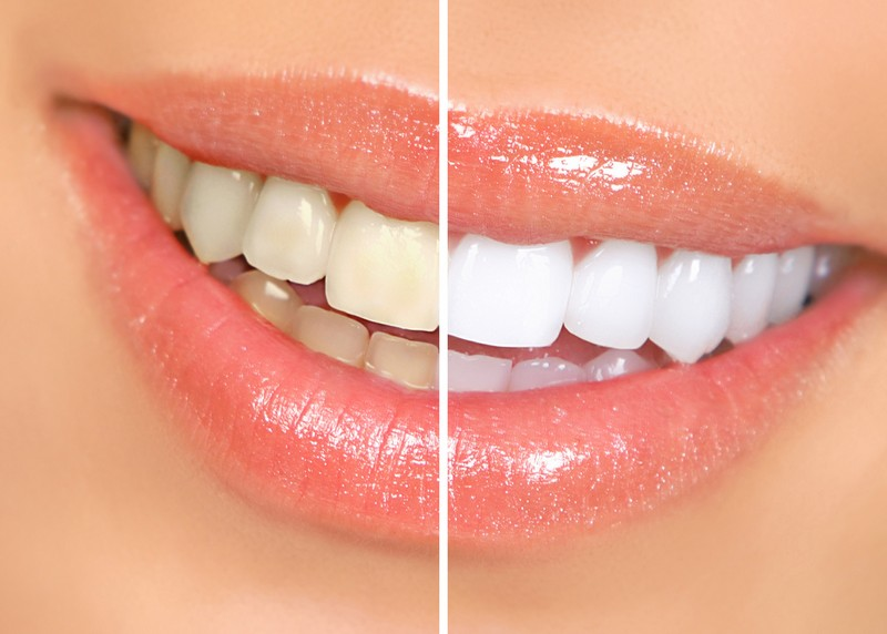 Teeth Whitening  Philadelphia, PA